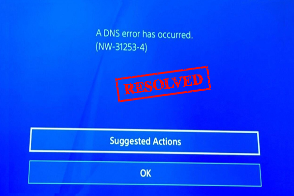 ps4 dns error thumbnail